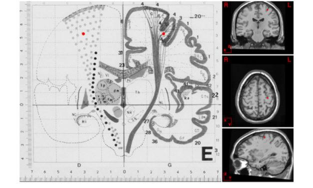 Neural Underpinnings
