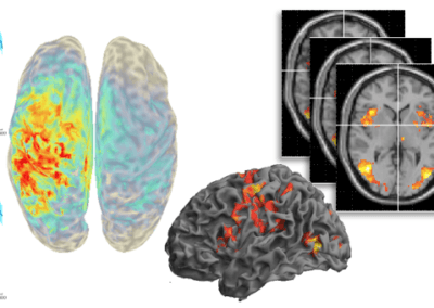 Effects of ageing on inter-hemispheric cross-talk – Studying EEG, FMRI, and DTI in the context of motor learning