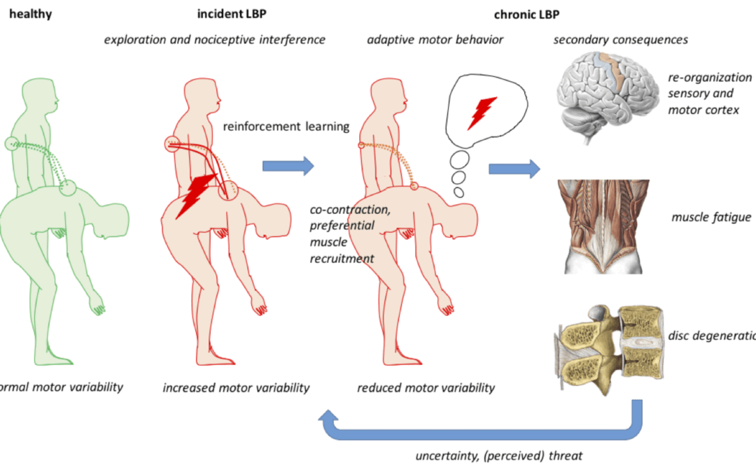 Motor learning in patients with low-back pain