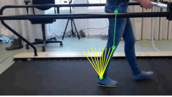 Prosthetic and Orthotic Dynamic Alignment for Rehabilitation