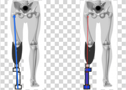 Kinetic gait data to quantify socket fit and prosthetic alignment in amputees